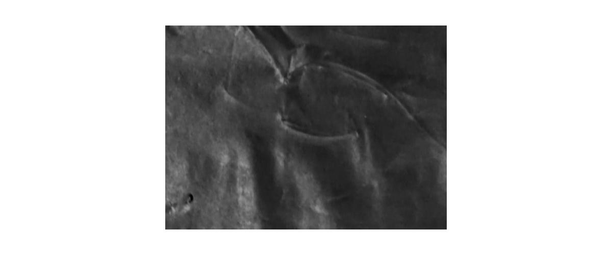 fibi-woreczki-detal-1